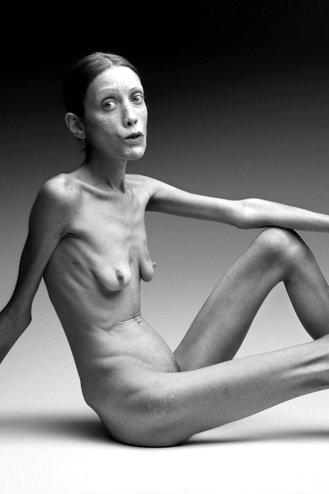 anoreksiya-foto-golih